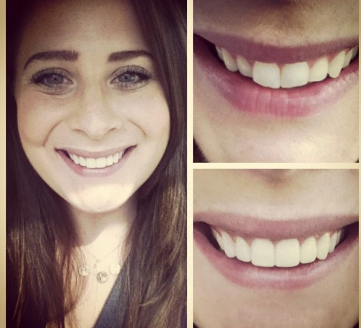 My Experience With No Prep Veneers
